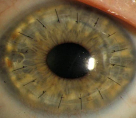 Bio-tech firm develops 3D printed replacement cornea for human eyes