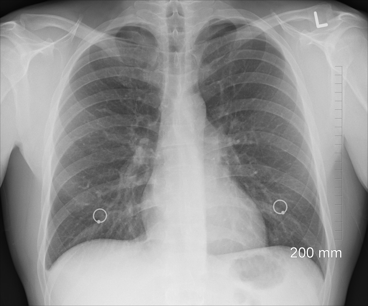 lung_xray