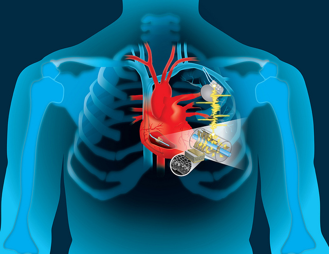 Engineers use the heart's energy to self-charge a bio-implant device