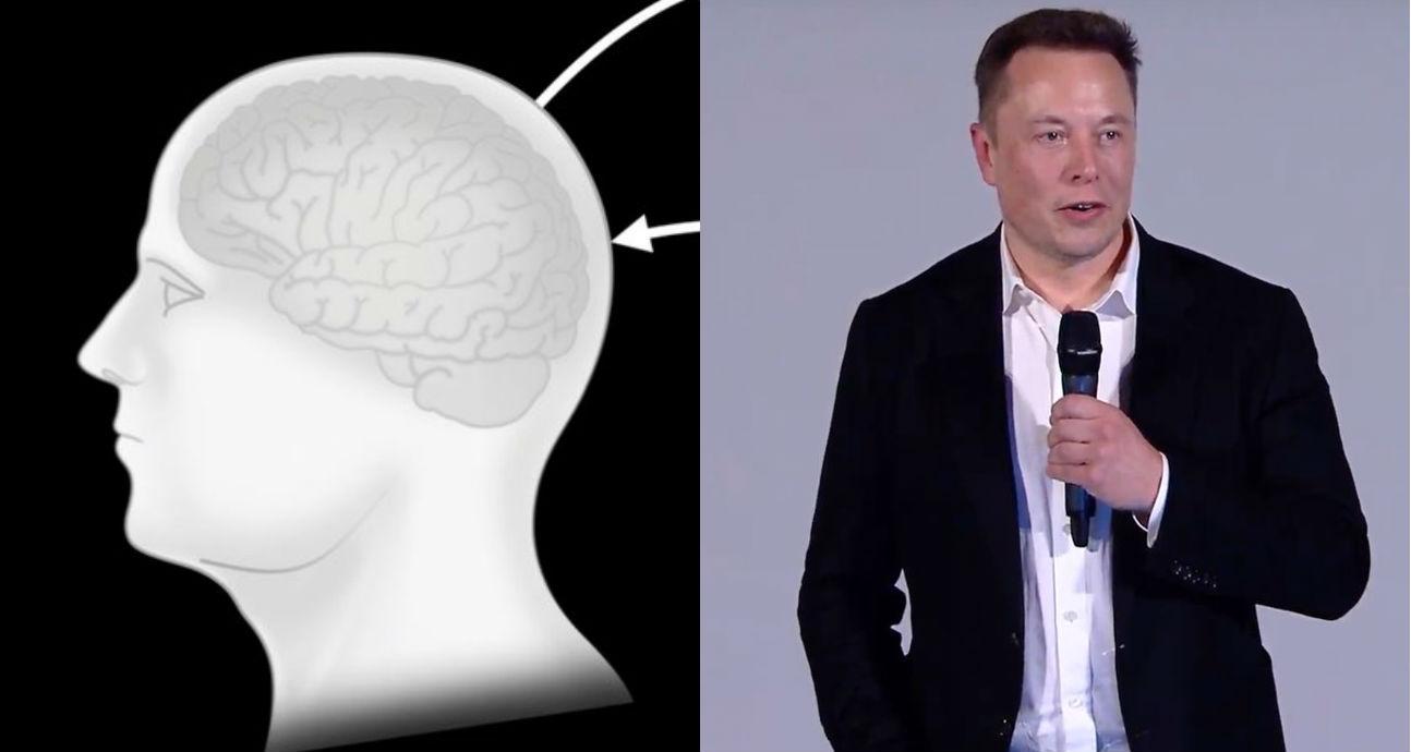 Elon Musk 39 s Neuralink targets human trials for brain